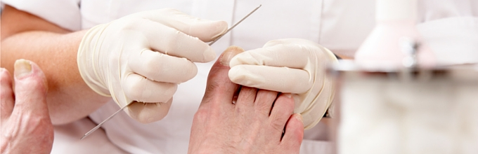 Podiatry treatments