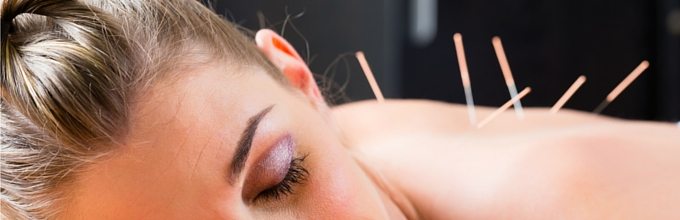 Medical Acupuncture